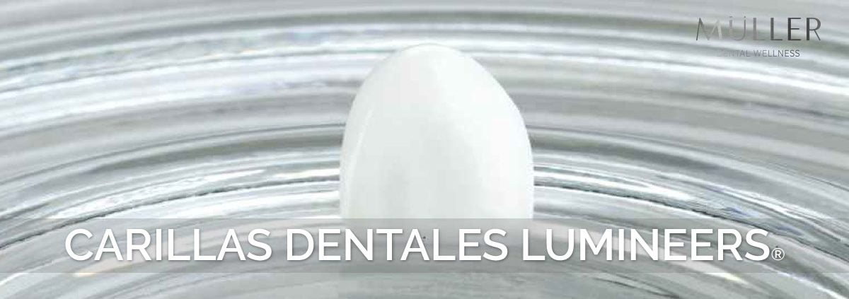 carillas dentales Lumineers