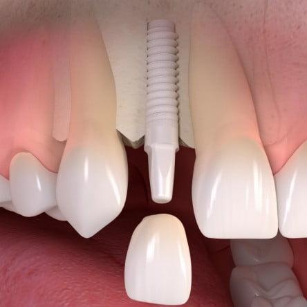 implante de zirconio