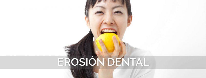 Erosión Dental cómo evitarla