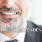 Motivos por los que realizar un blanqueamiento dental
