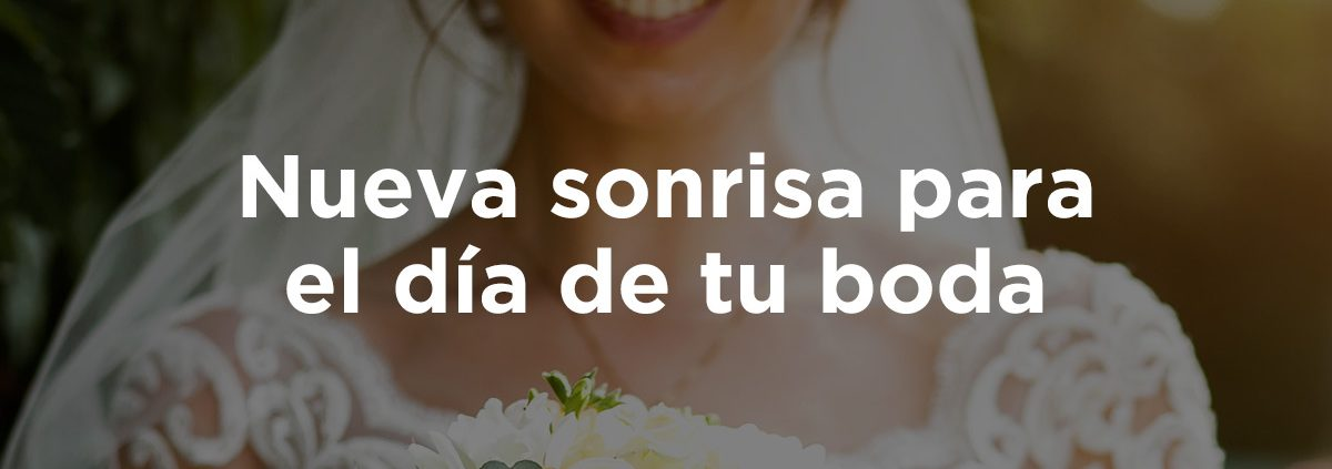 sonrisa para tu boda