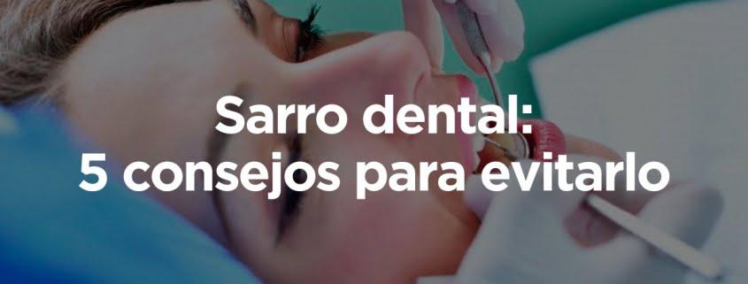 sarro dental consejos