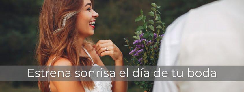 Estética Dental Bodas Valencia