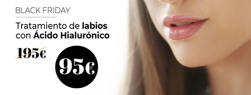 Tratamiento Labios Acido Hialurónico