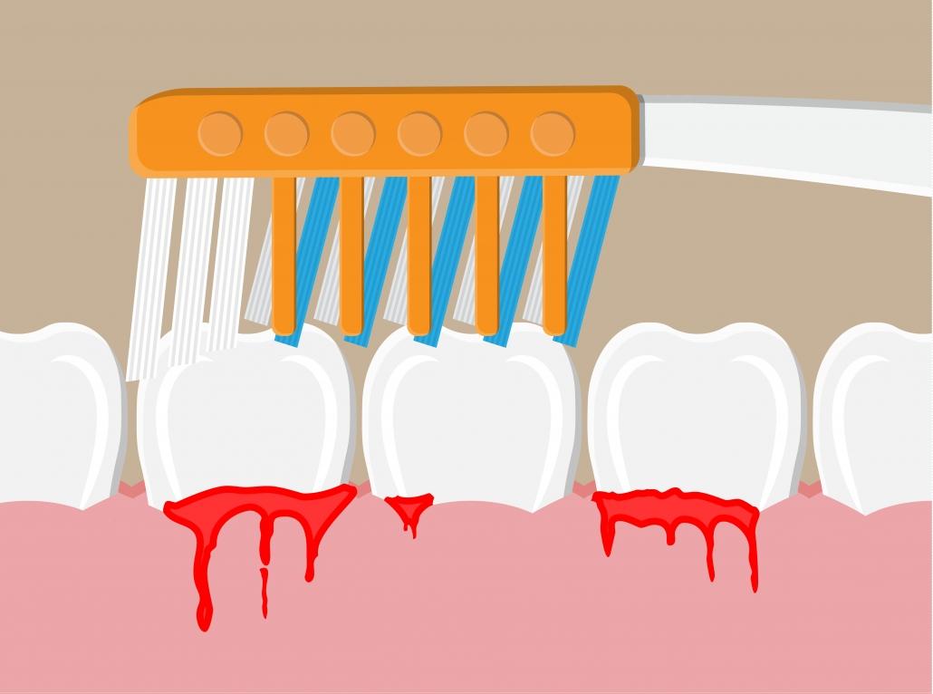Ilustración sangrado de encías, motivo para acudir al servicio de urgencias