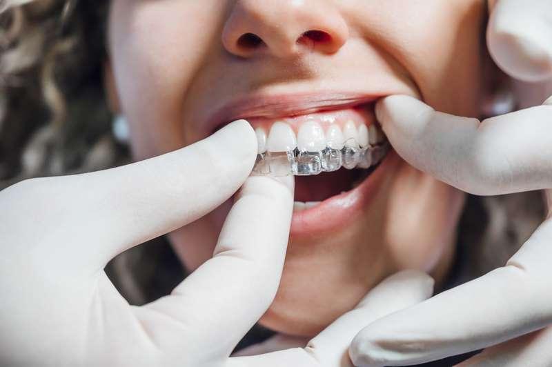 Dentista colocando a una paciente una ortodoncia transparente en Valencia